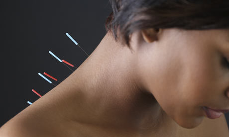 Acupuncture-needles-in-a--001.jpg