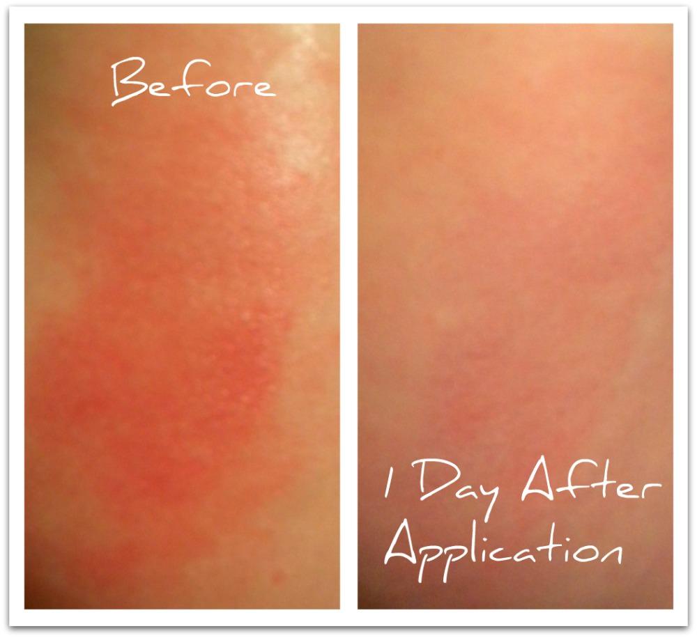 moody sisters skincare eczema cream