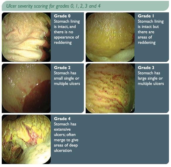 Bilde lånt fra: http://equinevision.blogspot.no/2013/05/equine-gastric-ulcer-syndrome-egus.html