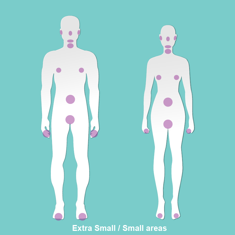Extra Small / Small Areas - ChinNoseEarsUpper LipSideburnsHalf Face or NeckAreolaUmbilical AreaBikini LineFingers or Toes