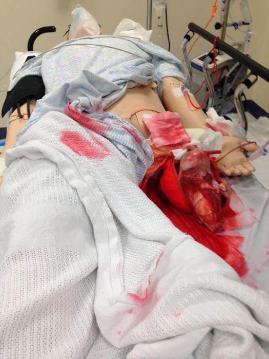Catastrophic Limb Haemorrhage Scenario