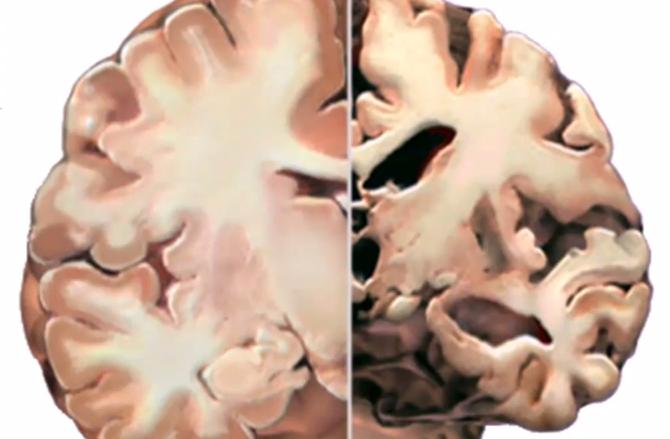 Healthy brain vs. chronically stressed brain