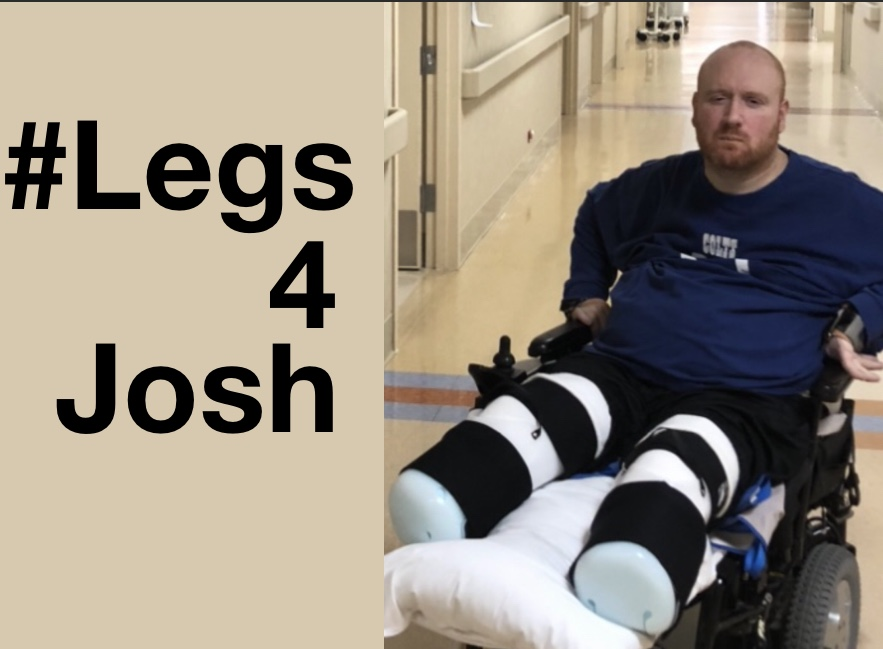 GoFundMe For Josh's Prosthetics