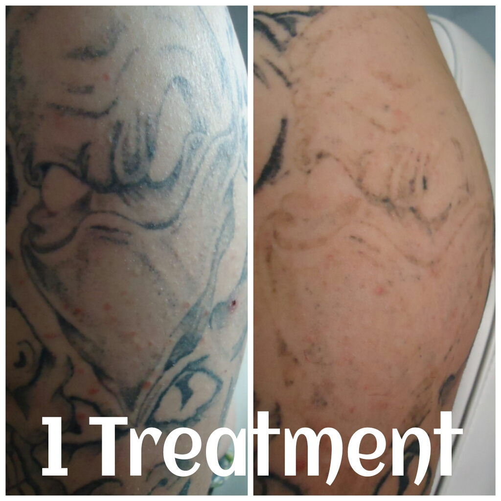 Reno Tattoo Removal before and after 1 treatment