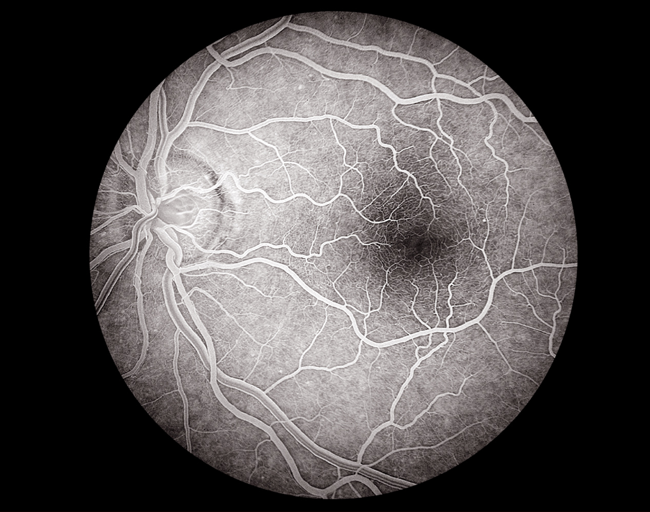 © Mark Maio 30 Degree View Left Eye Optic Nerve and Fovea Angiogram.jpg