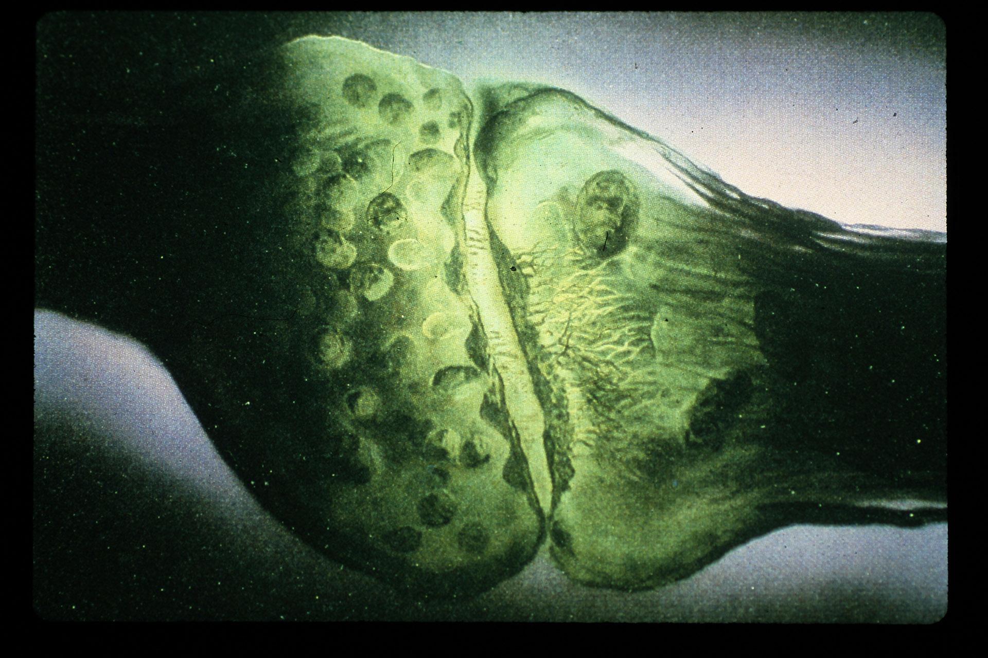 Conceptualization of a nerve synapse , February 1979  Frank Armitage