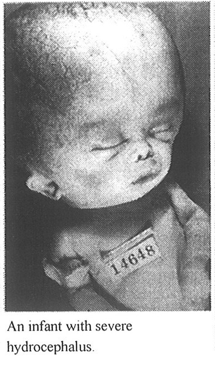 Baby suffering from hydro-cephalus. Photo: Wikipedia.