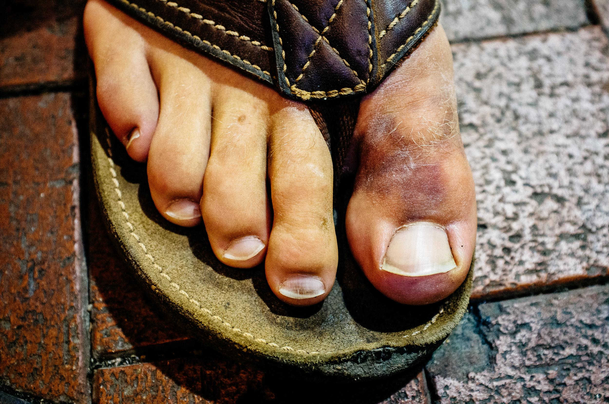 Broken Toe.jpg