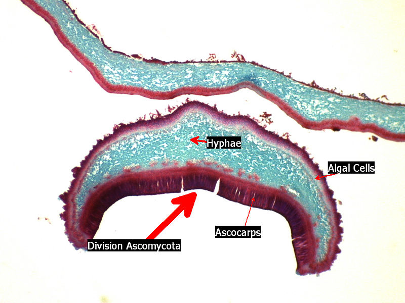 Cross section of an apothecium of a lichen.