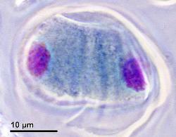 Telophase I of Meiosis