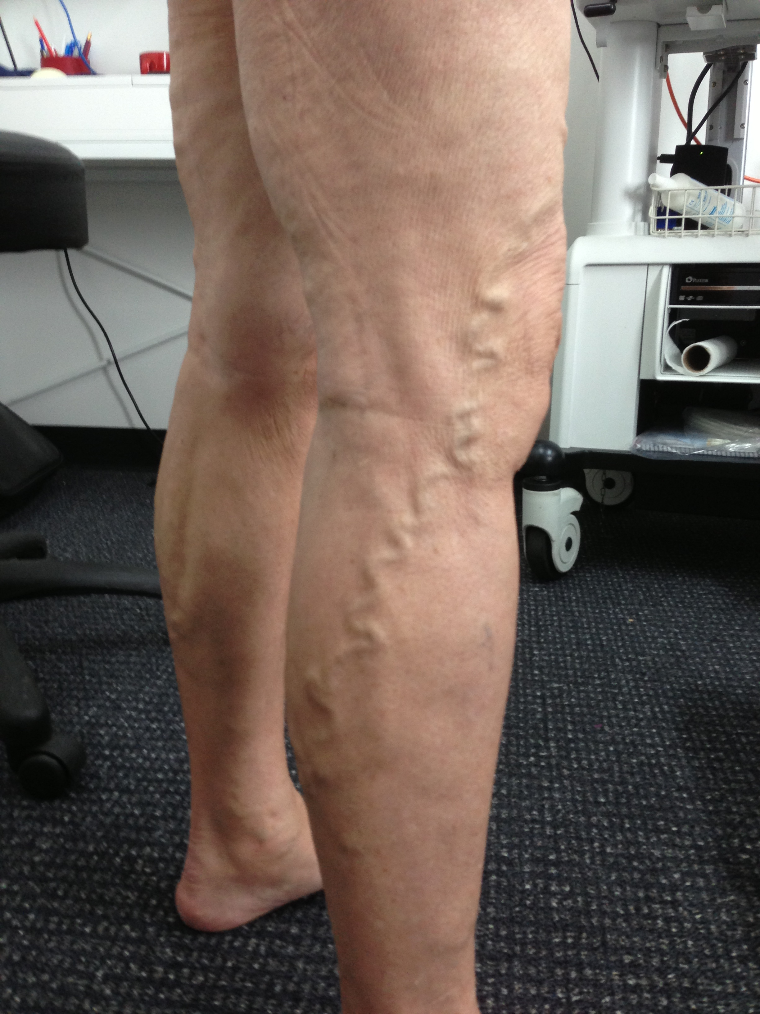 Patient presenting with Varicose Veins - Female, 64 years from Redcliffe.