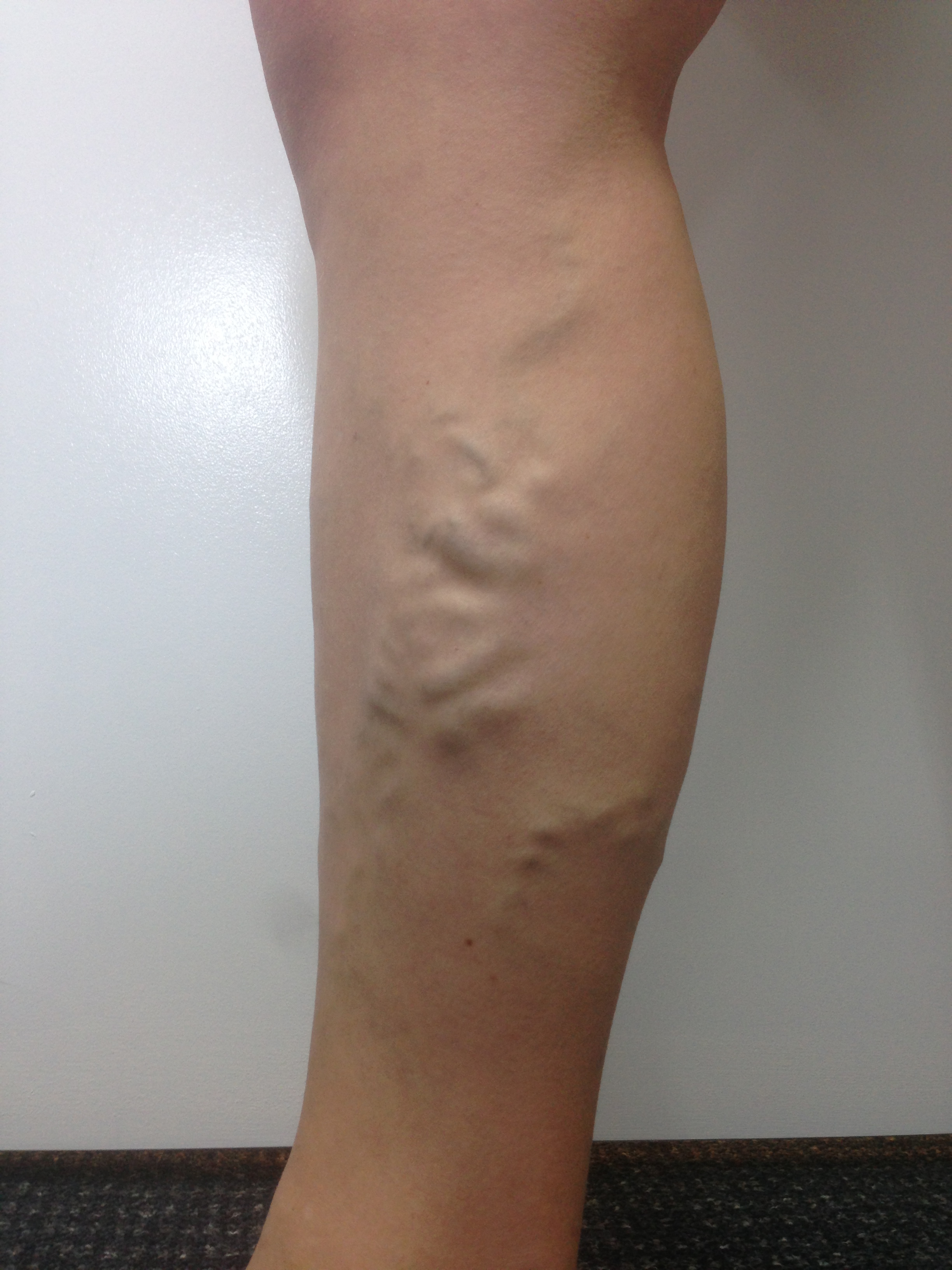 Patient presenting with Varicose Veins - Female, 28 years from Ipswich.