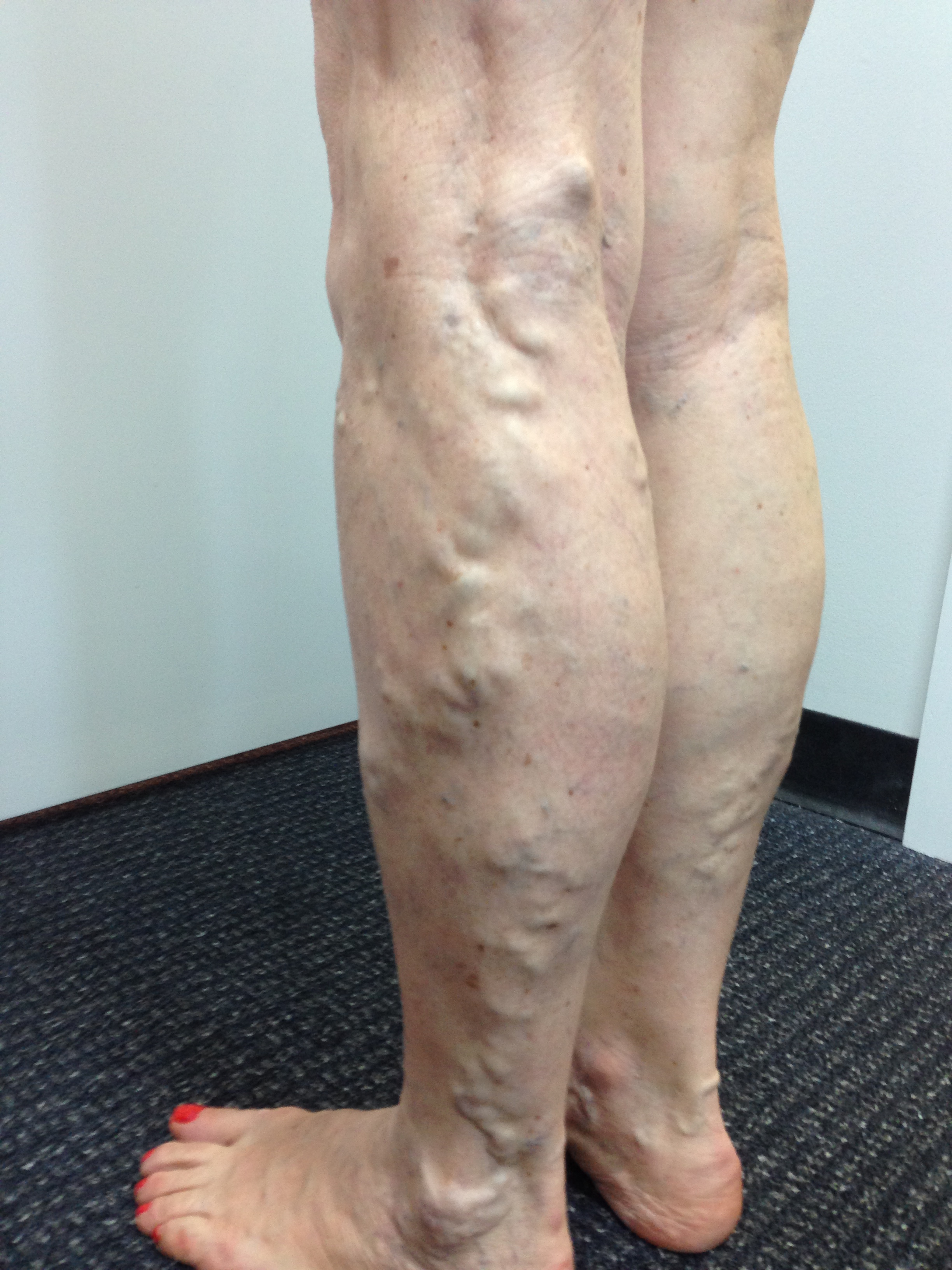 Patient presented with extensive Varicose Veins, SPJ/SSV incompetent. Female, 64 years.