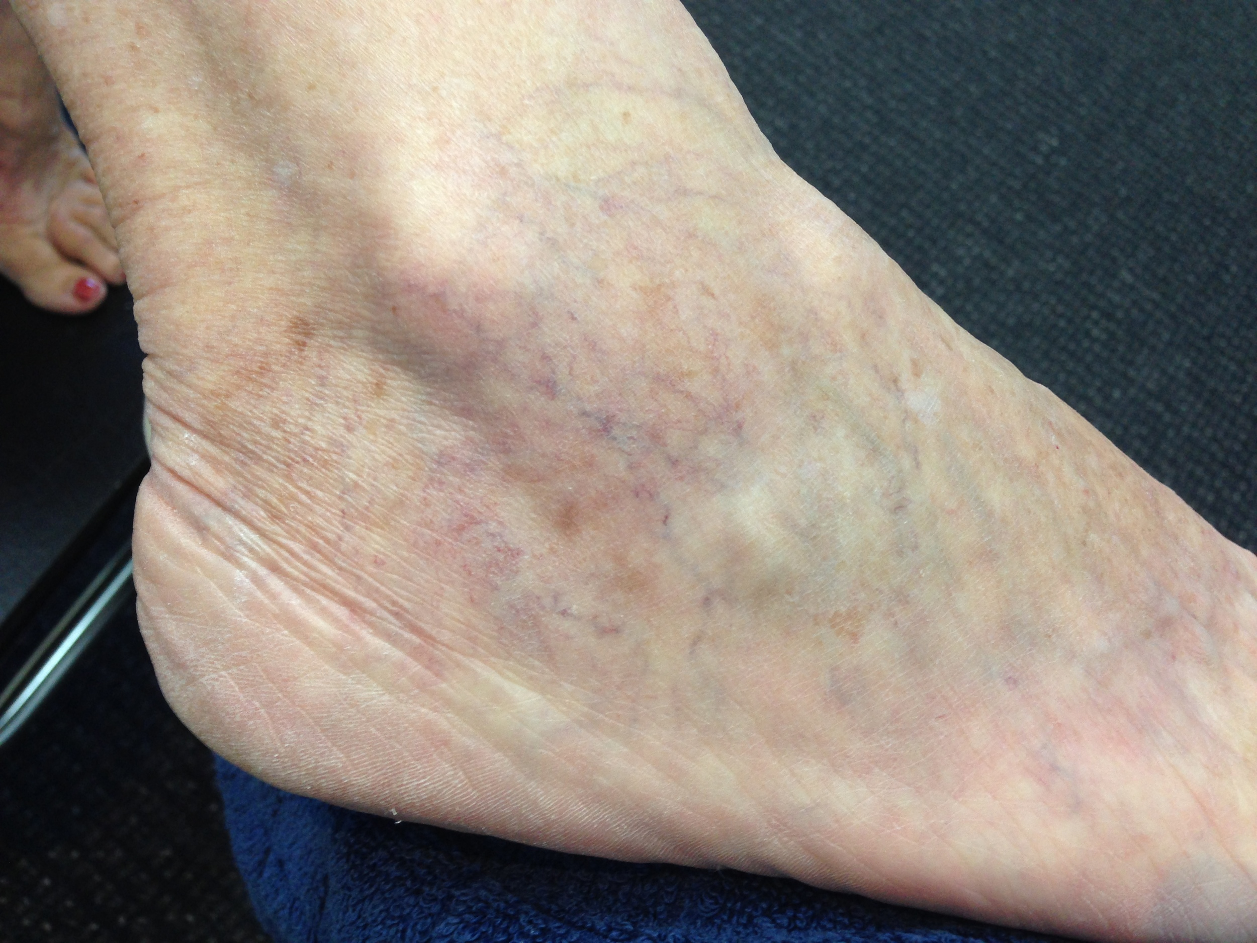 Treatment: EndoVenous Laser Therapy and Ultrasound Guided Sclerotherapy