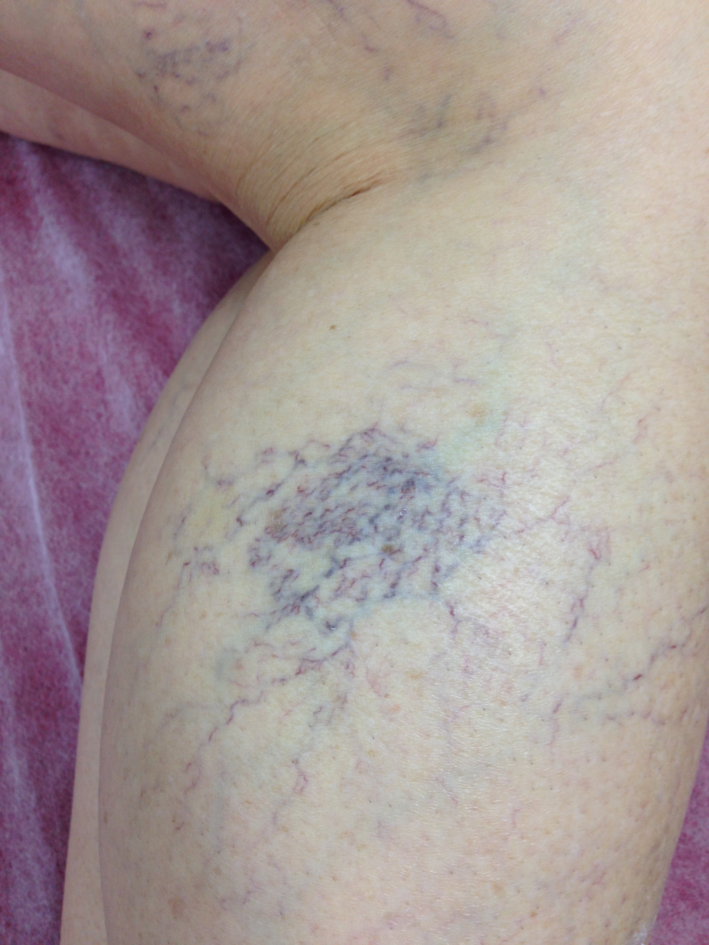 Patient presented with extensive Telangiectasia. Female, 50 years.