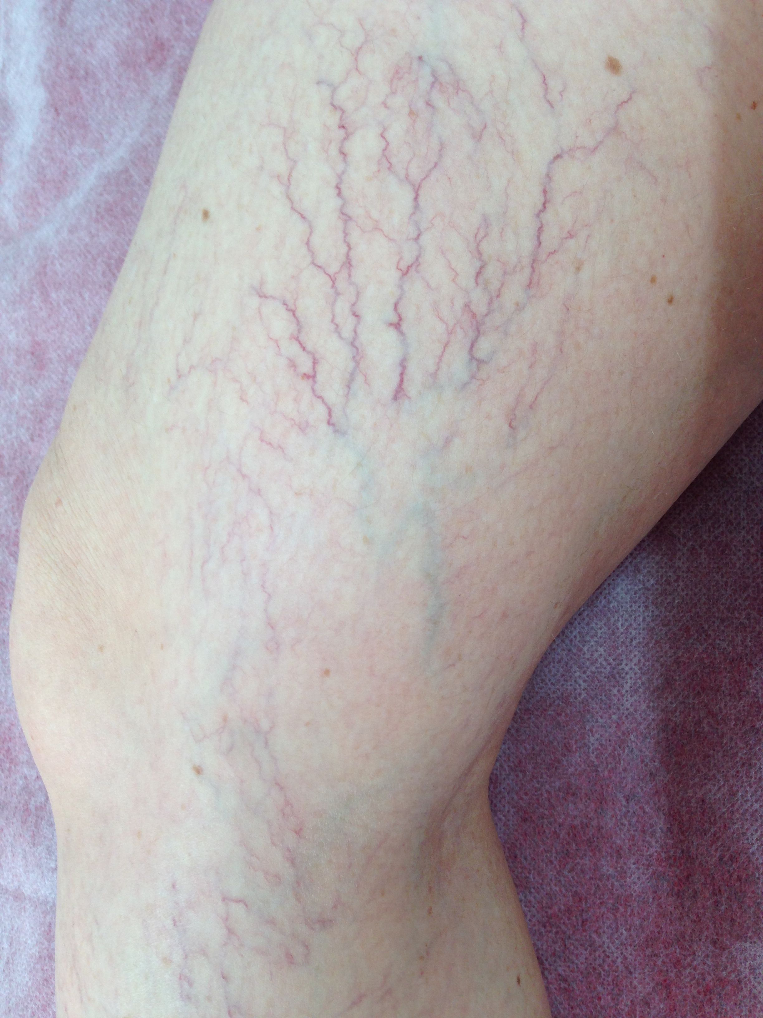 Patient presented with extensive Reticular veins with associated Telangiestasia. Female, 40 years.