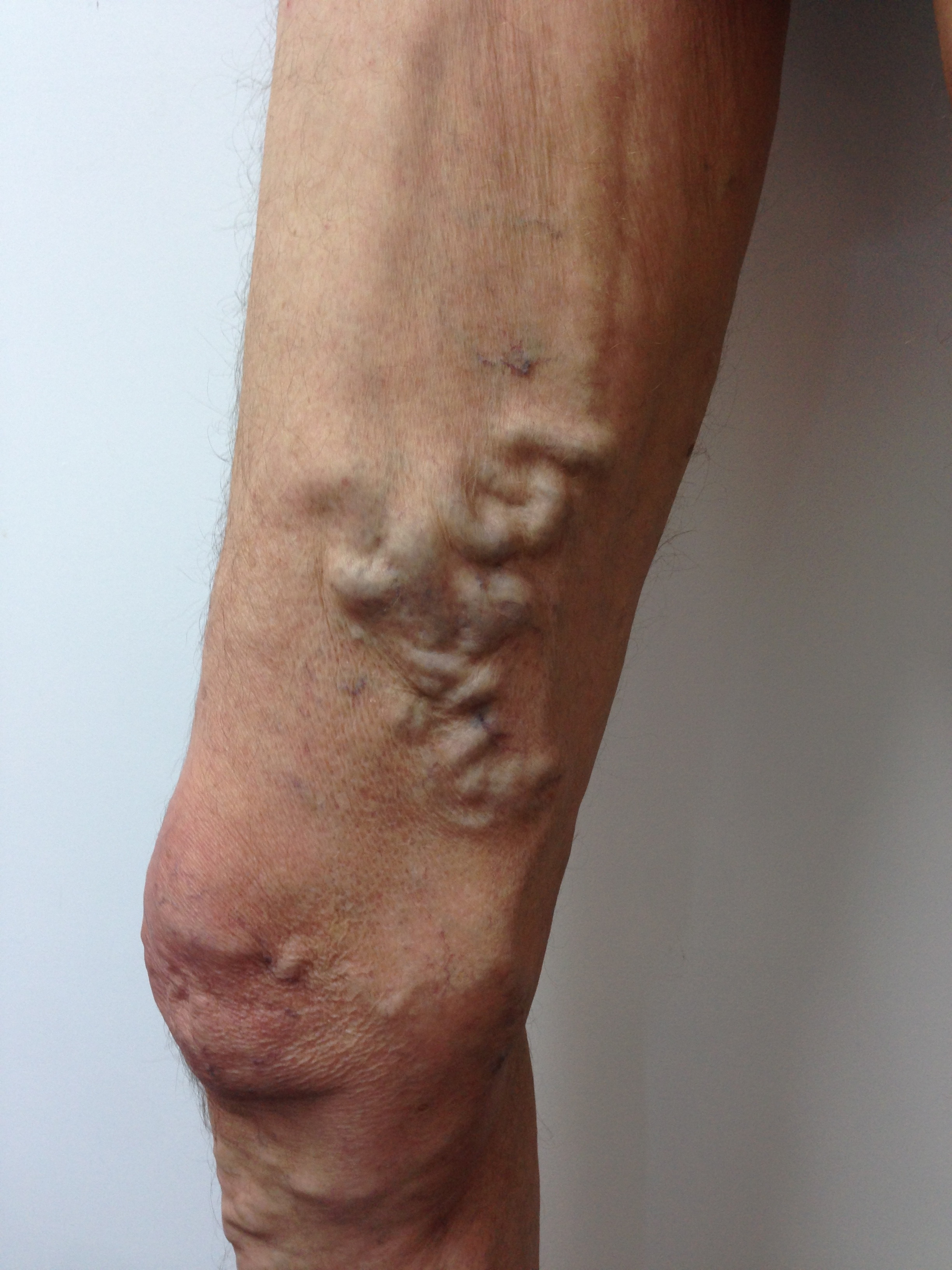 Patient presented with severe Varicose Veins associated with extensive GSV incompetence. Male, 73 years.
