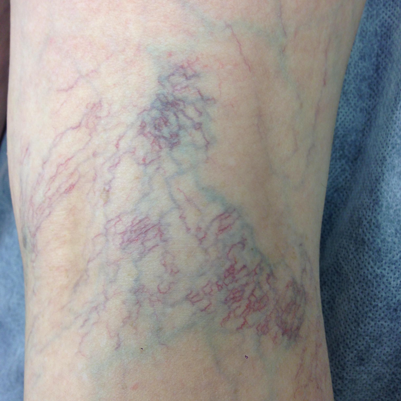 43 Year old Female. Telangiectasia posterior knee.