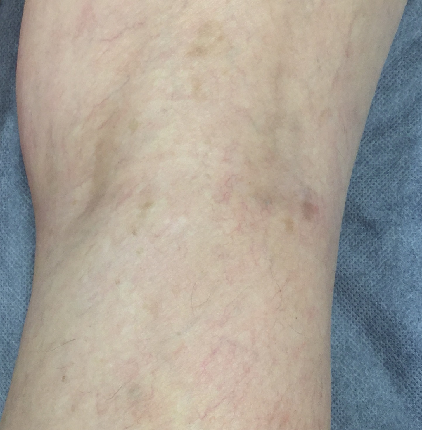 Microsclerotherapy x 3