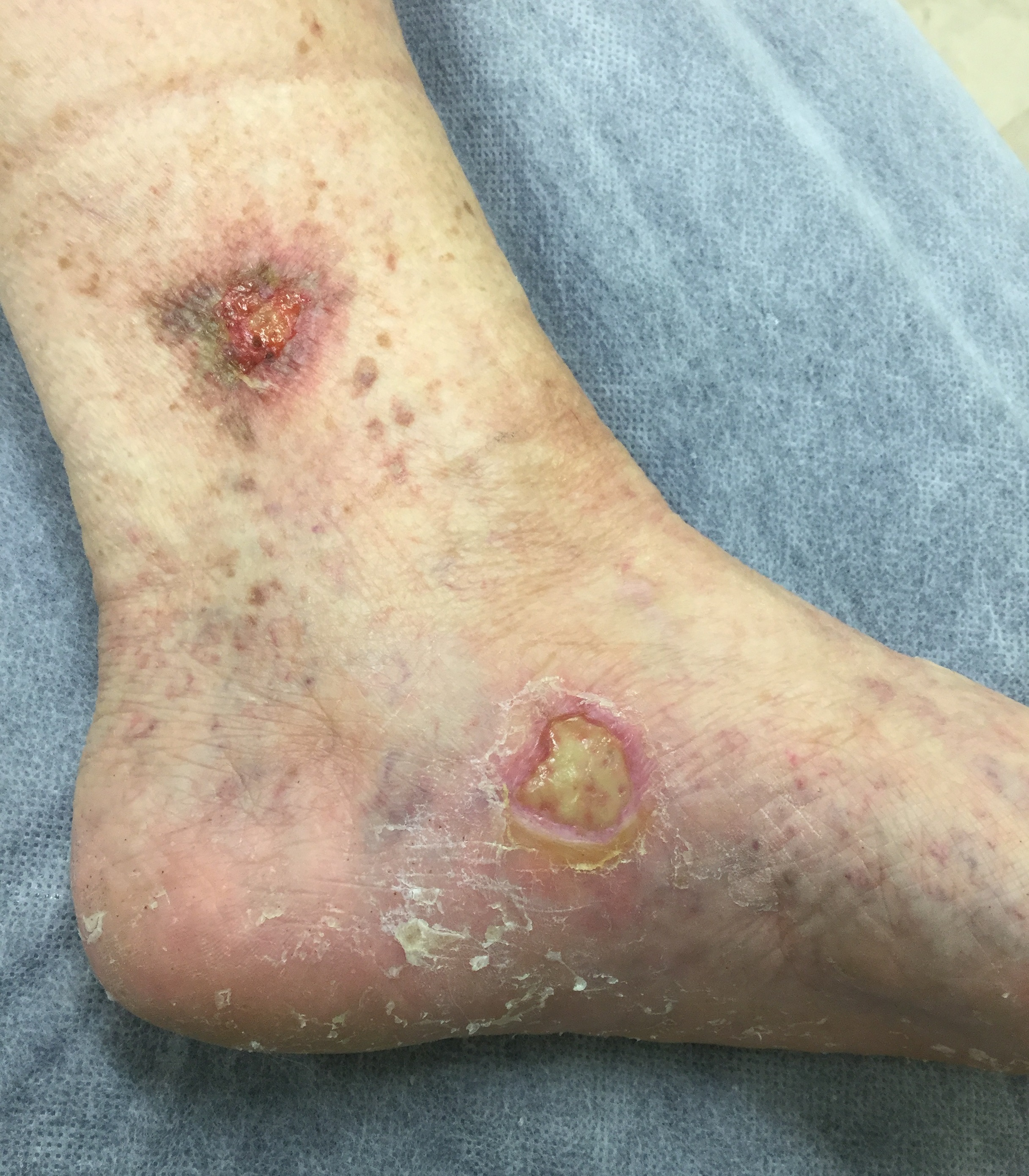Venous Ulcer on a female patient with untreated Varicose Veins.