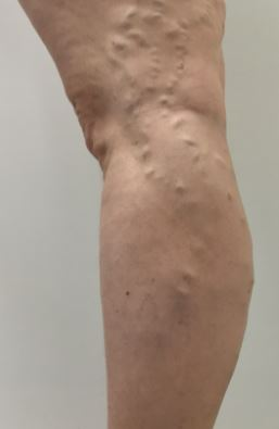Failed surgical stripping resulting in recurrent Varicose Veins.