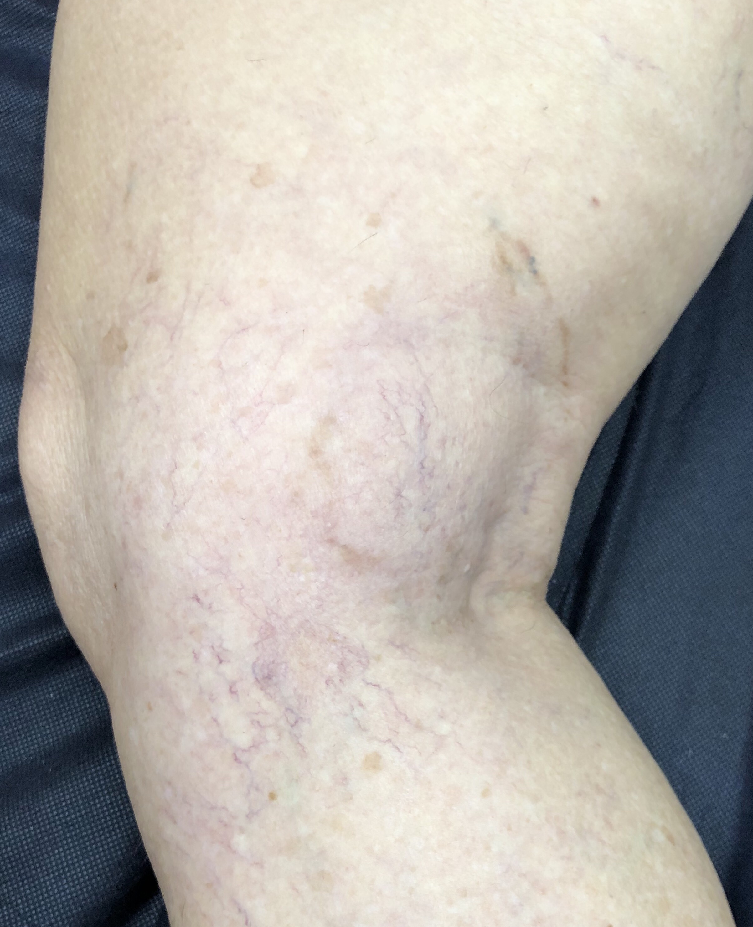After. At 3 months. Sclerotherapy 2 treatments.