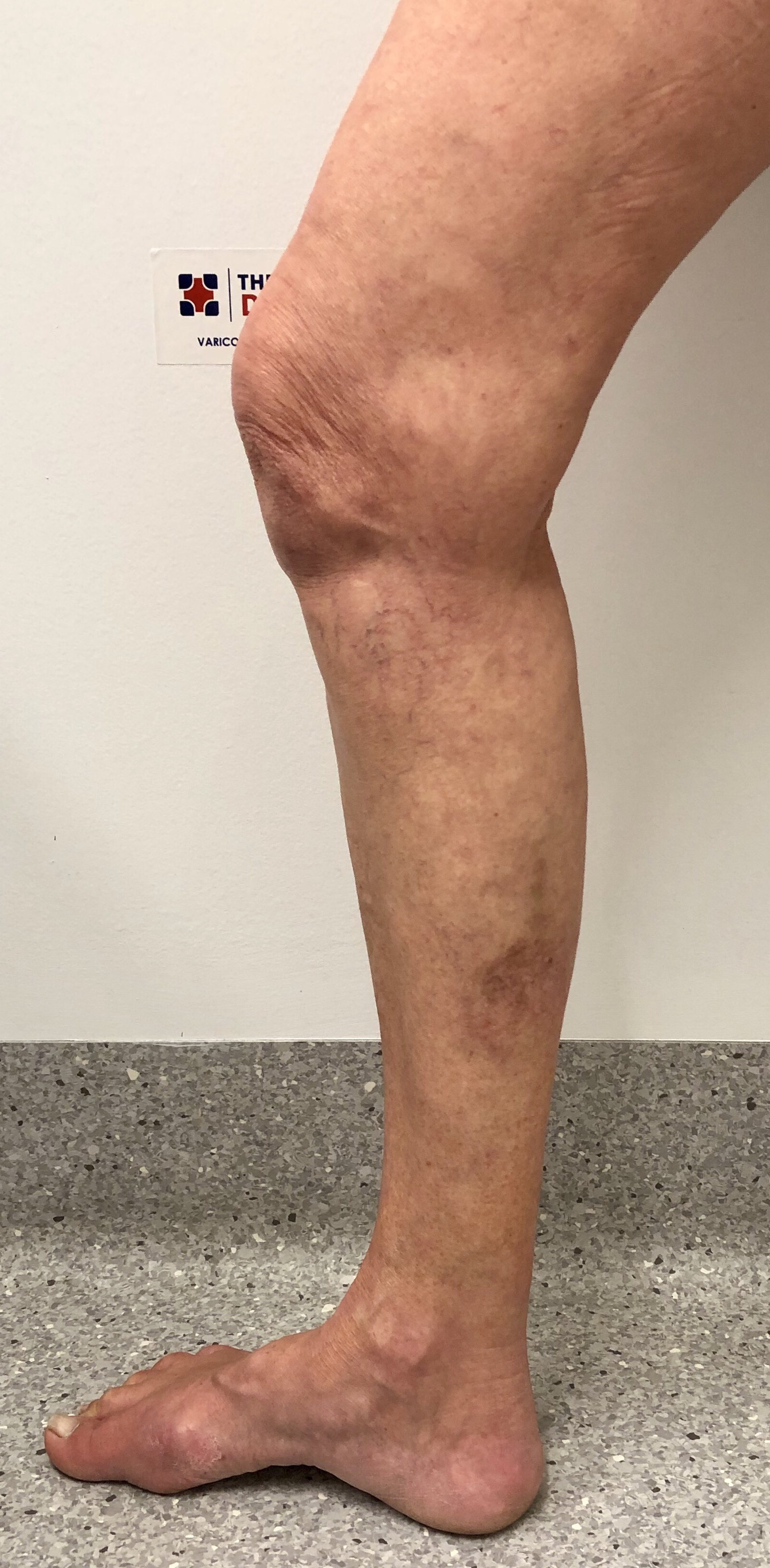 Treatment:Endovenous Laser Ablation and Ultrasound Guided Sclerotherapy. - Not hospitalized - Treated as an outpatient.Appearance at Six months post treatment.