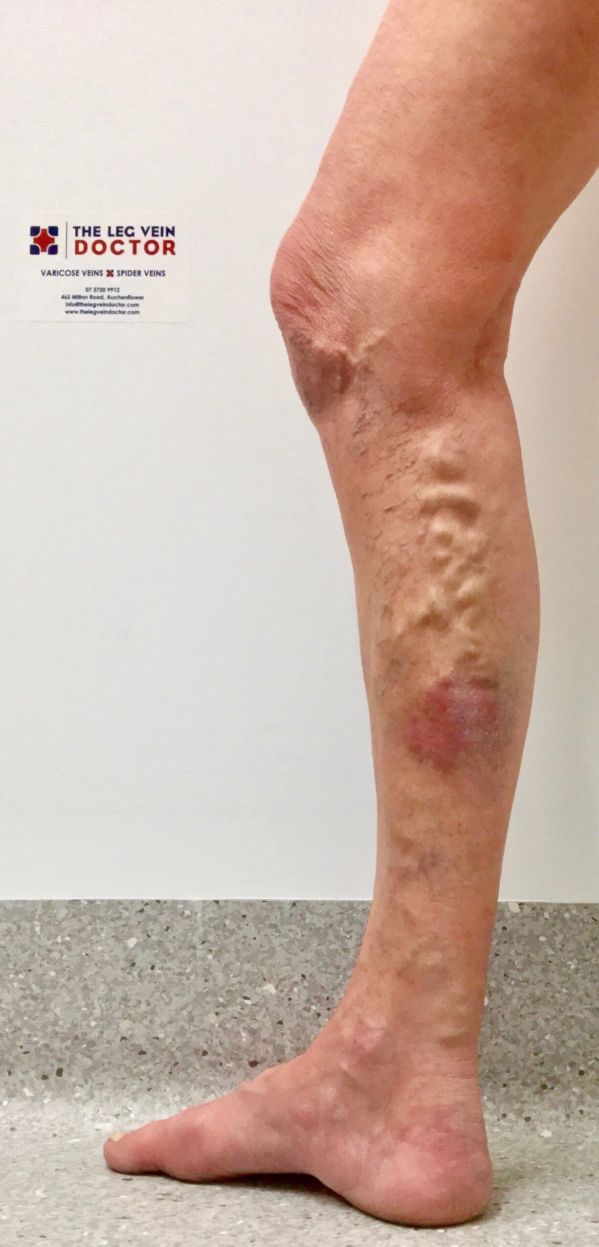 60 yr old lady with skin damage from refluxing Great saphenous vein. -