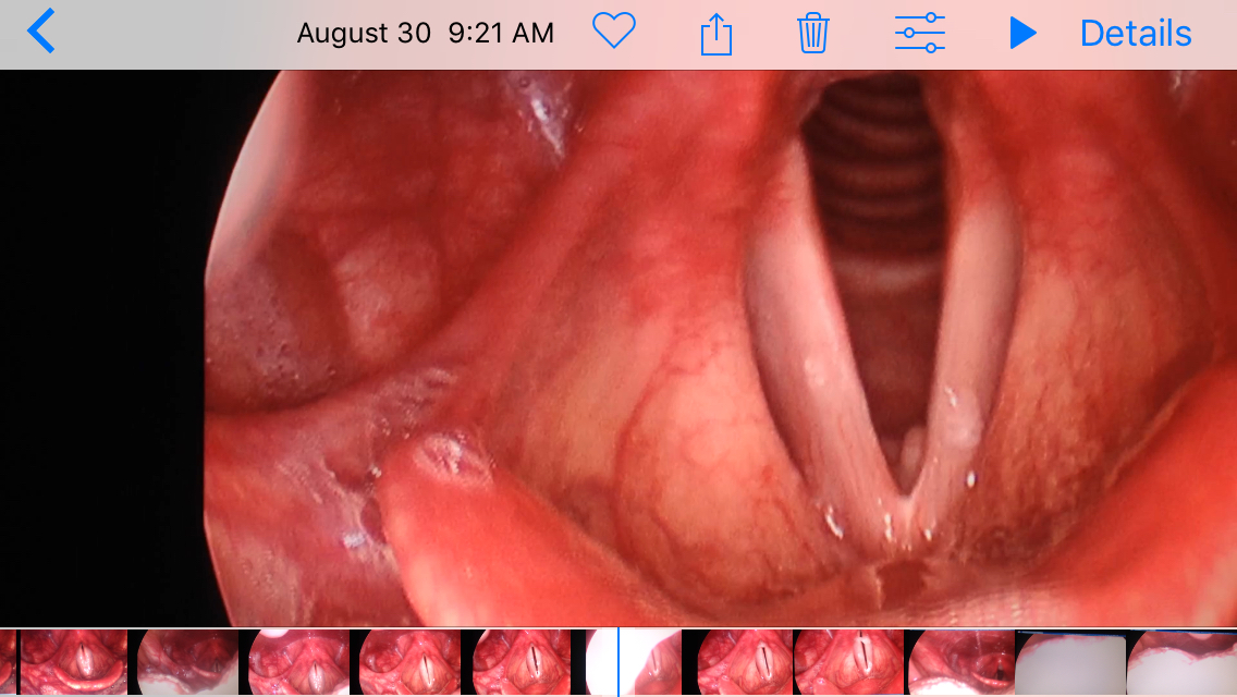 Embleton Vocal Cyst/Lesion
