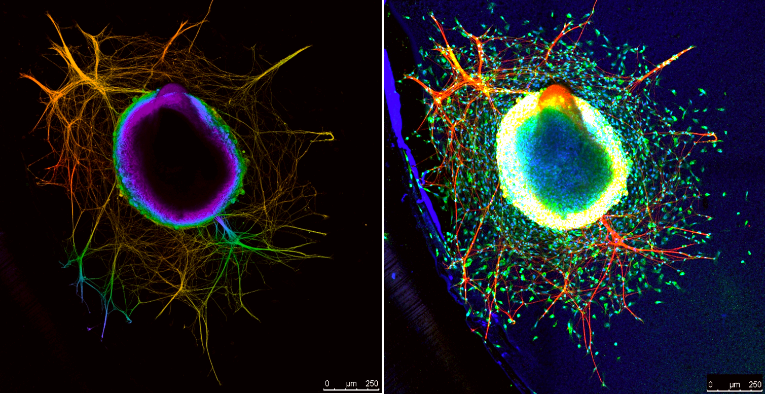 Two different visualizations of the same piece of neural tissue.
