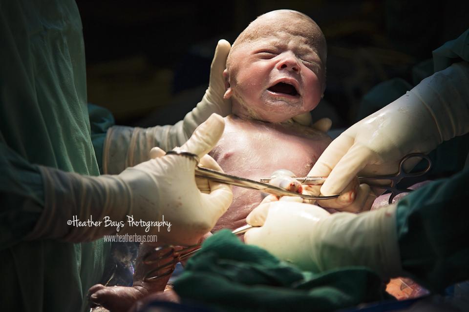August 25th   The Birth of Attis {birth story: unplanned cesarean section birth}