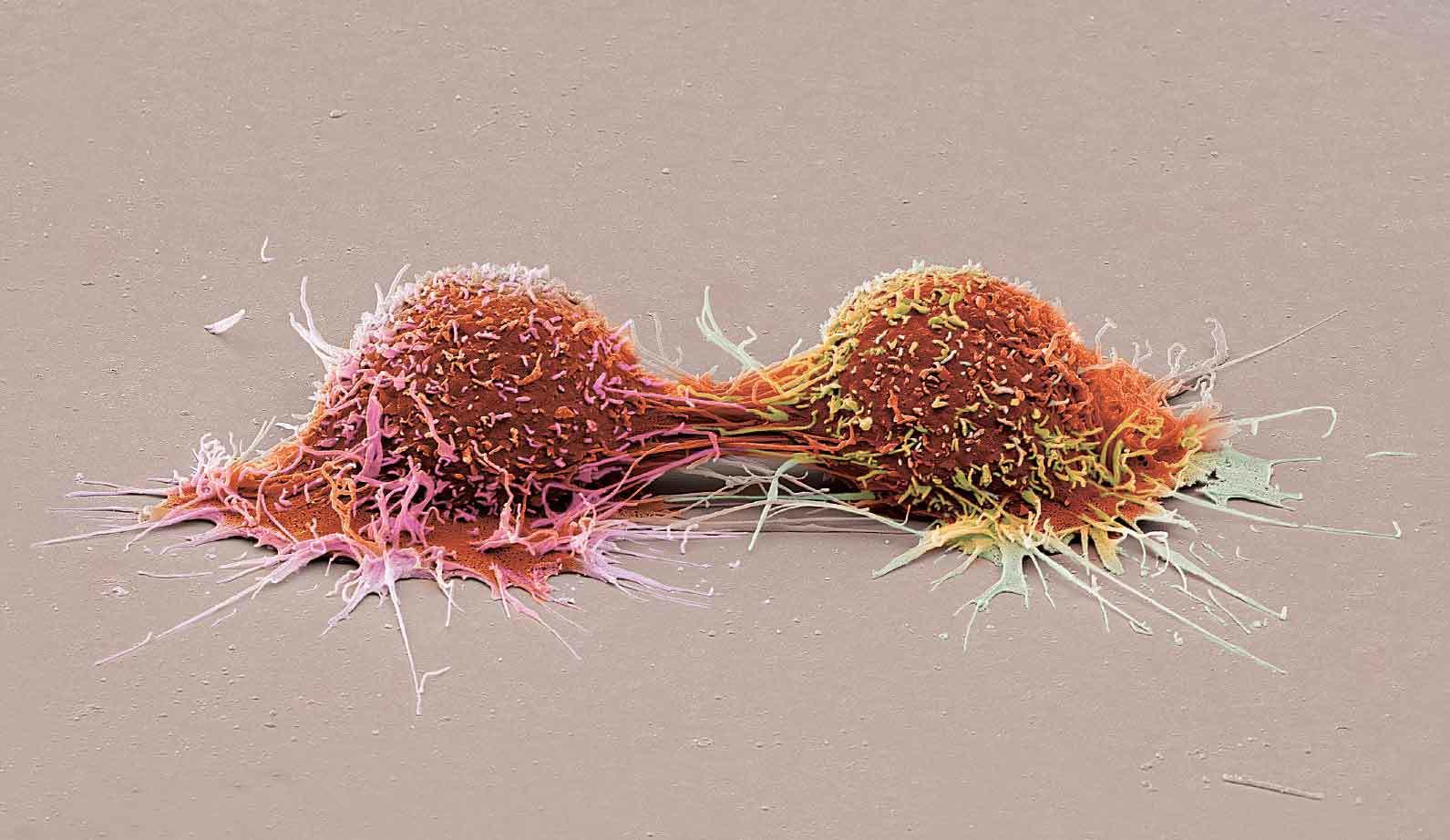 Dividing human cancer cells