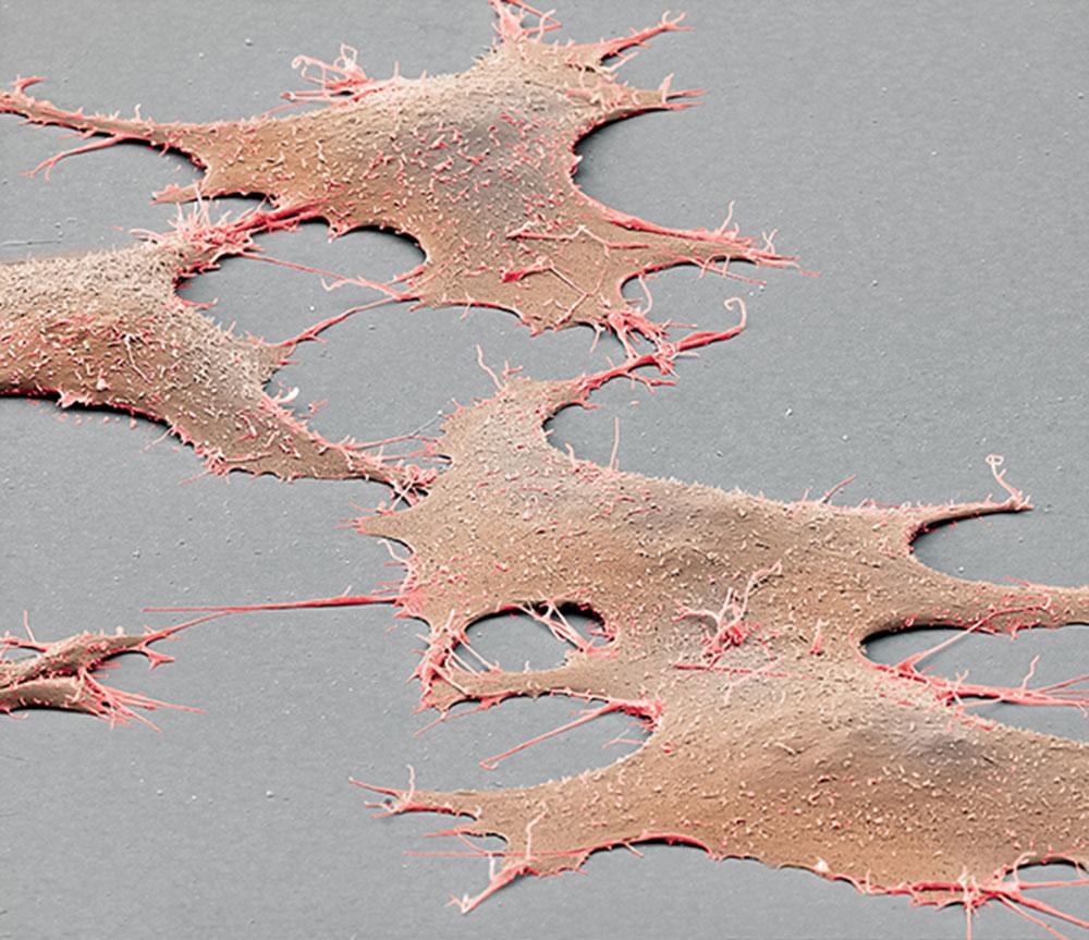 Skin cells
