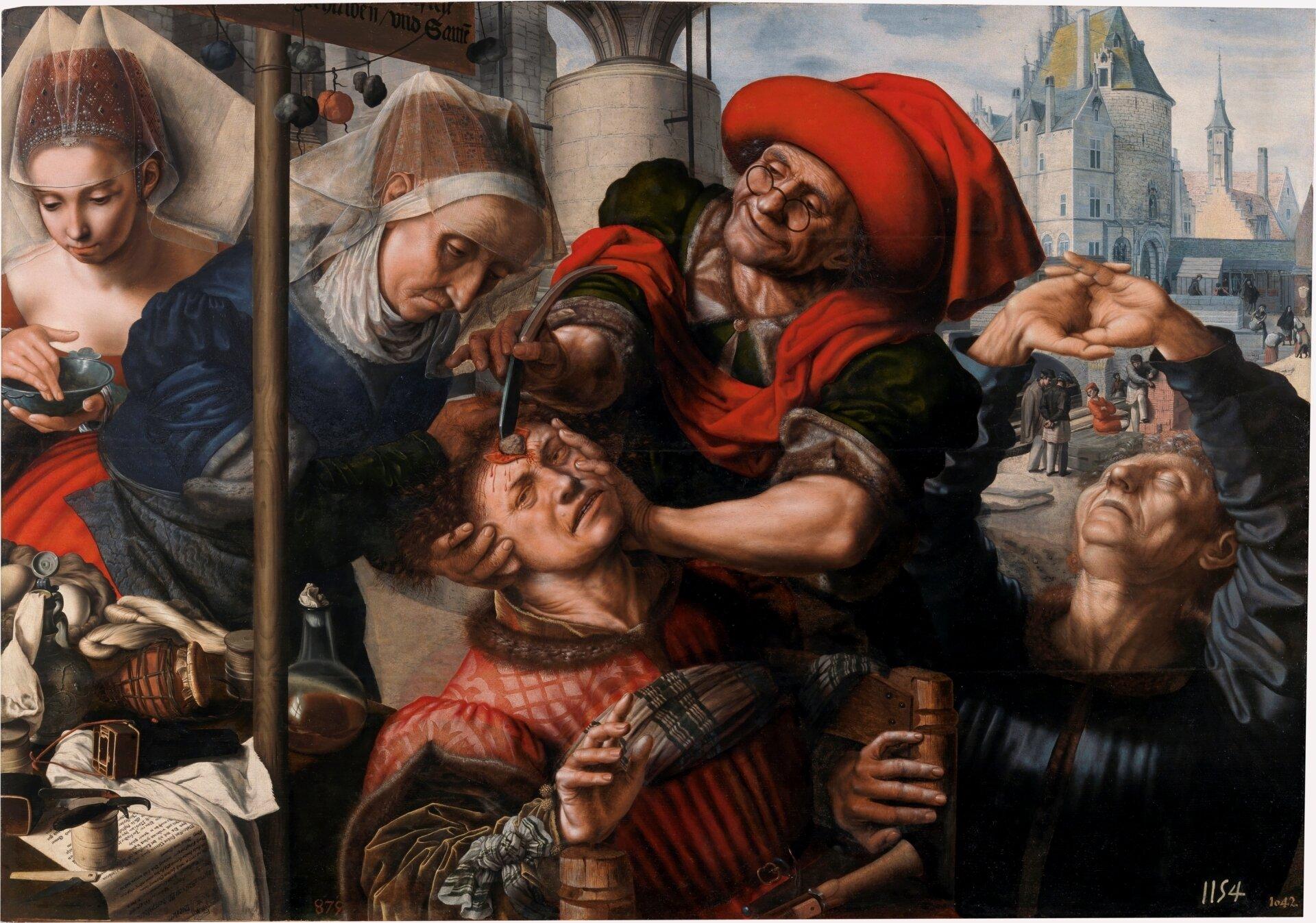 L'Excision de la pierre de Folie , Jan Sanders van Hemessen