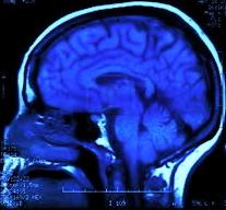 brain IV.jpg