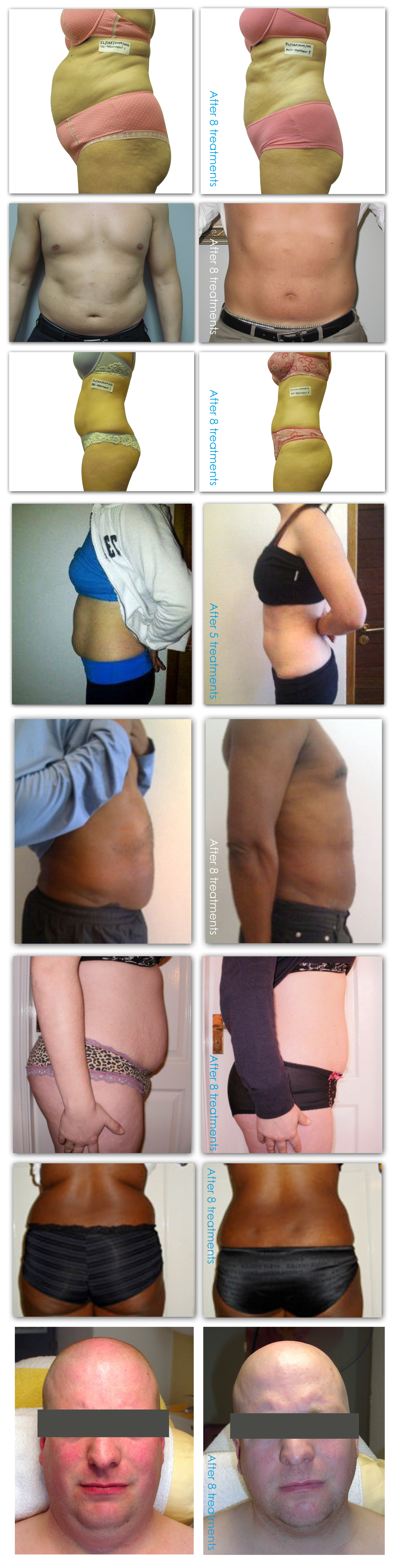 i-Lipo-before-after-web-new.jpg