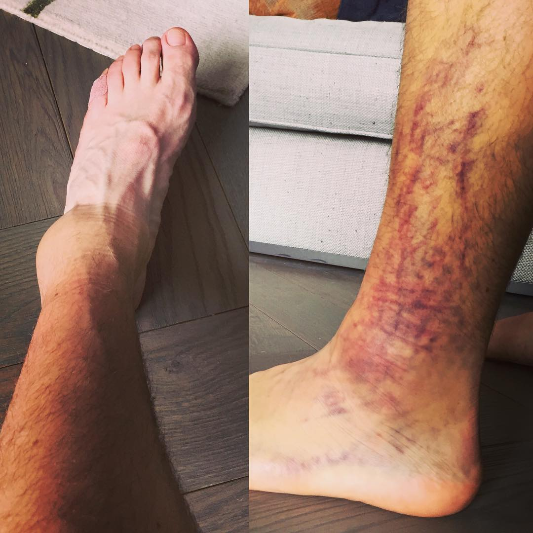 Rory McIlroy's ankle. Click to expand. Image: Instagram/Rory Mcilroy
