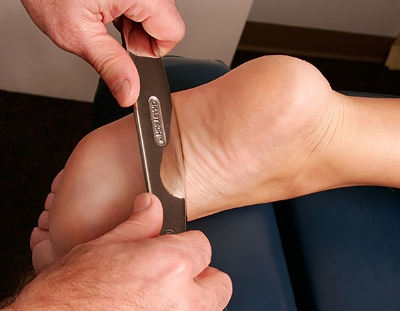 Graston technique applied to the bottom of the foot.