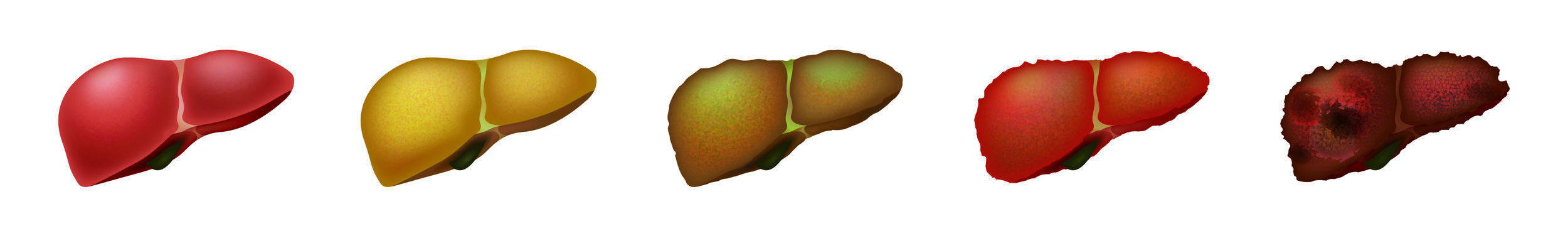 Liver_Conditions-01.jpg