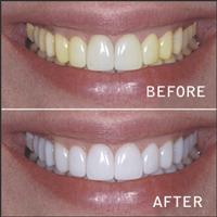 teeth_white_ba_200.jpg