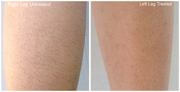Diolaze Laser Hair Removal After 6 Treatments