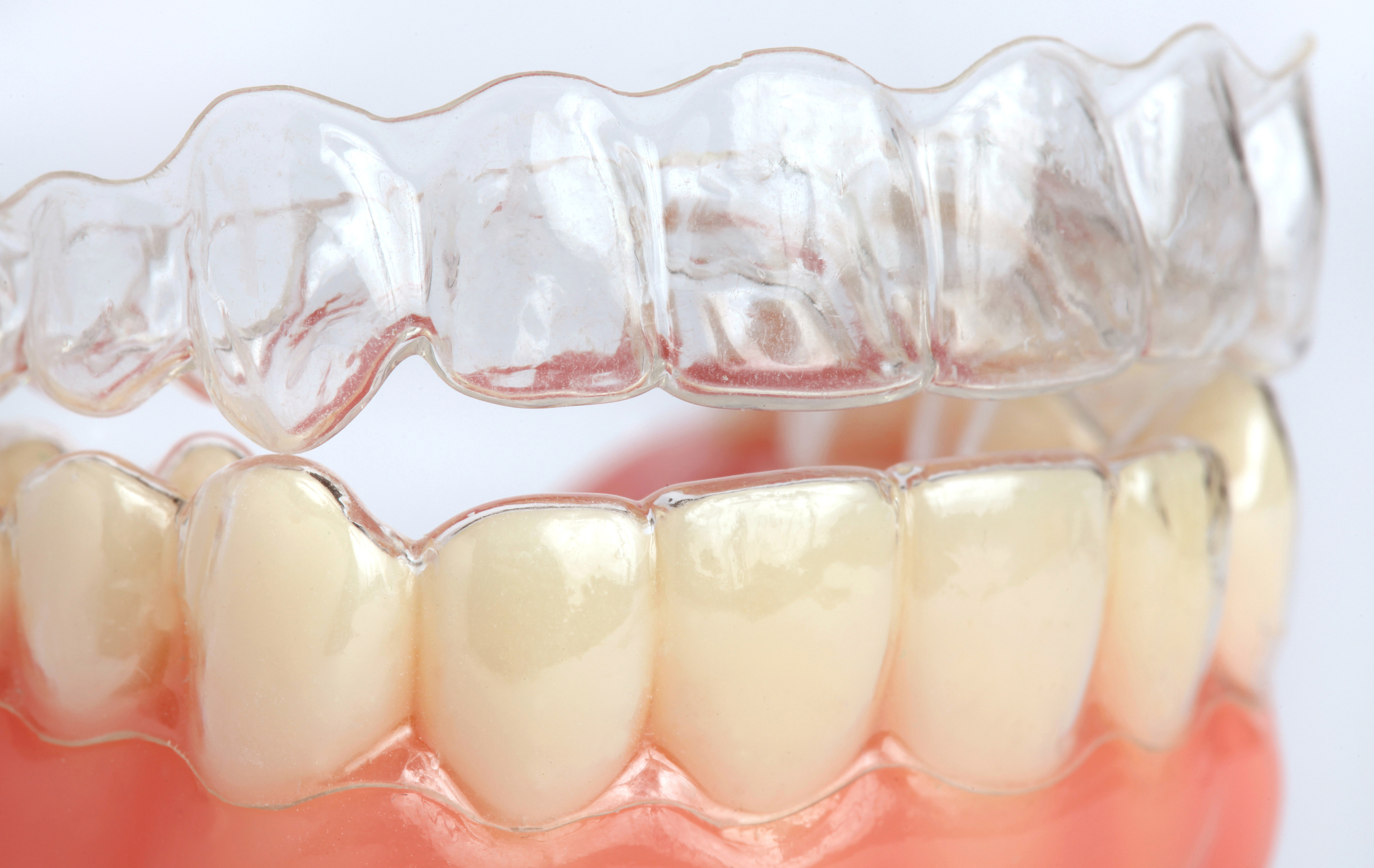 Invisalign aligners help you smile with confidence