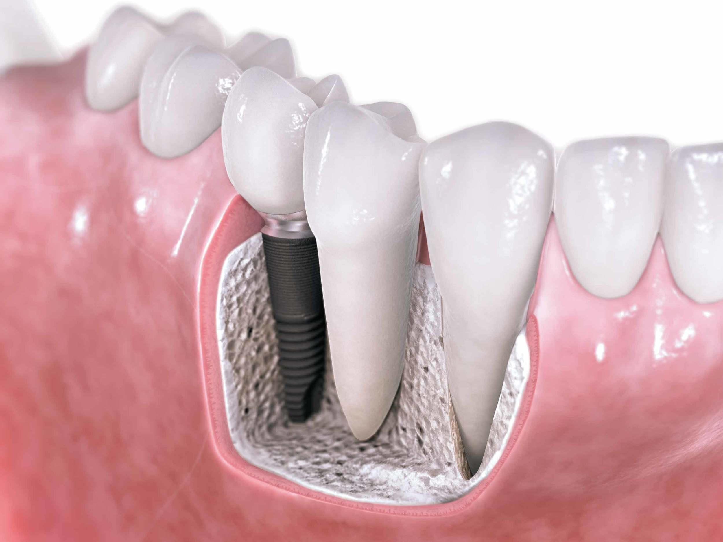 implant dentistry