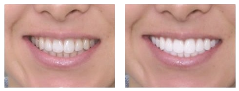 teeth whitening before and after