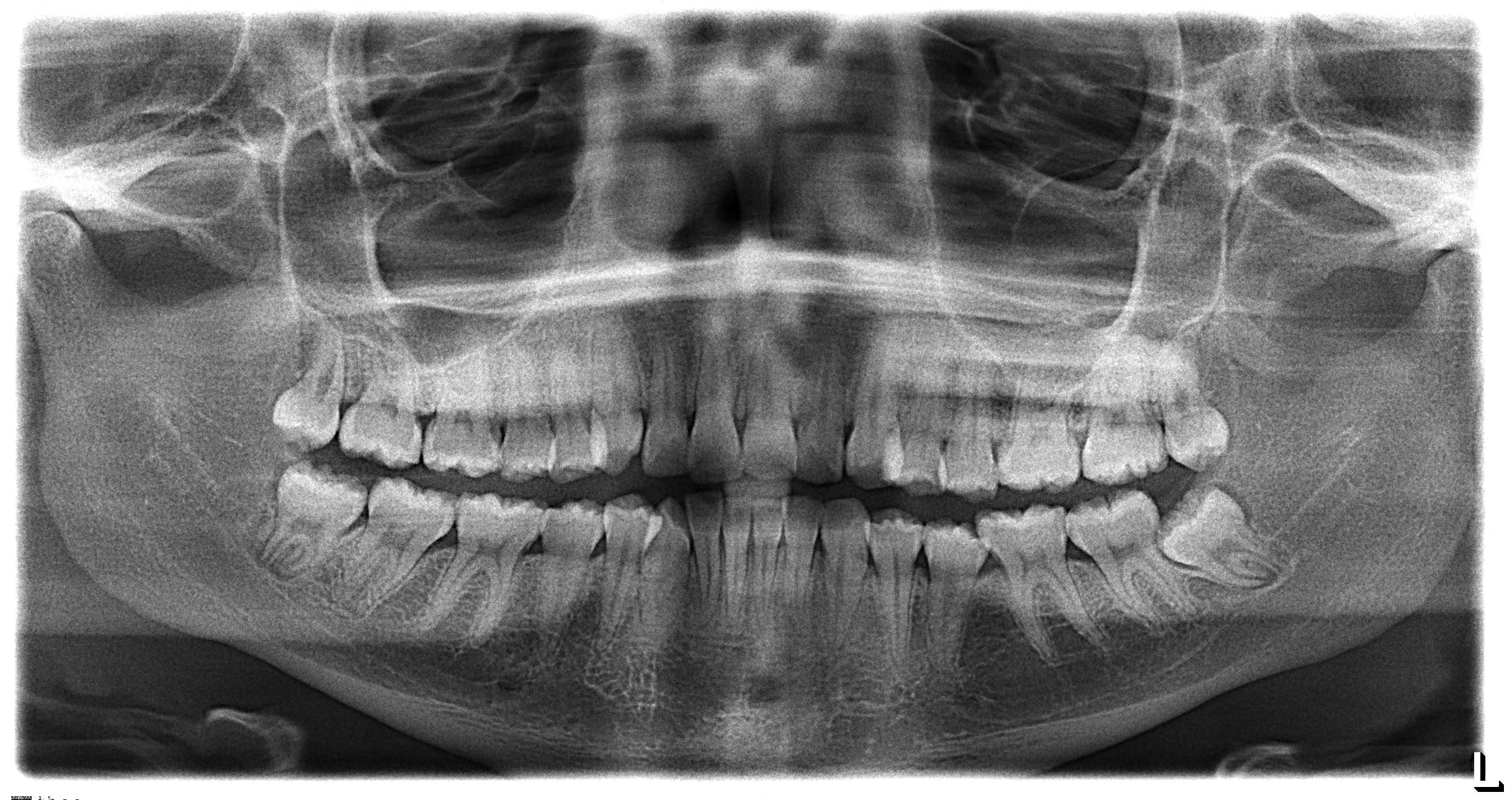 dental cleanings and exams and x-rays