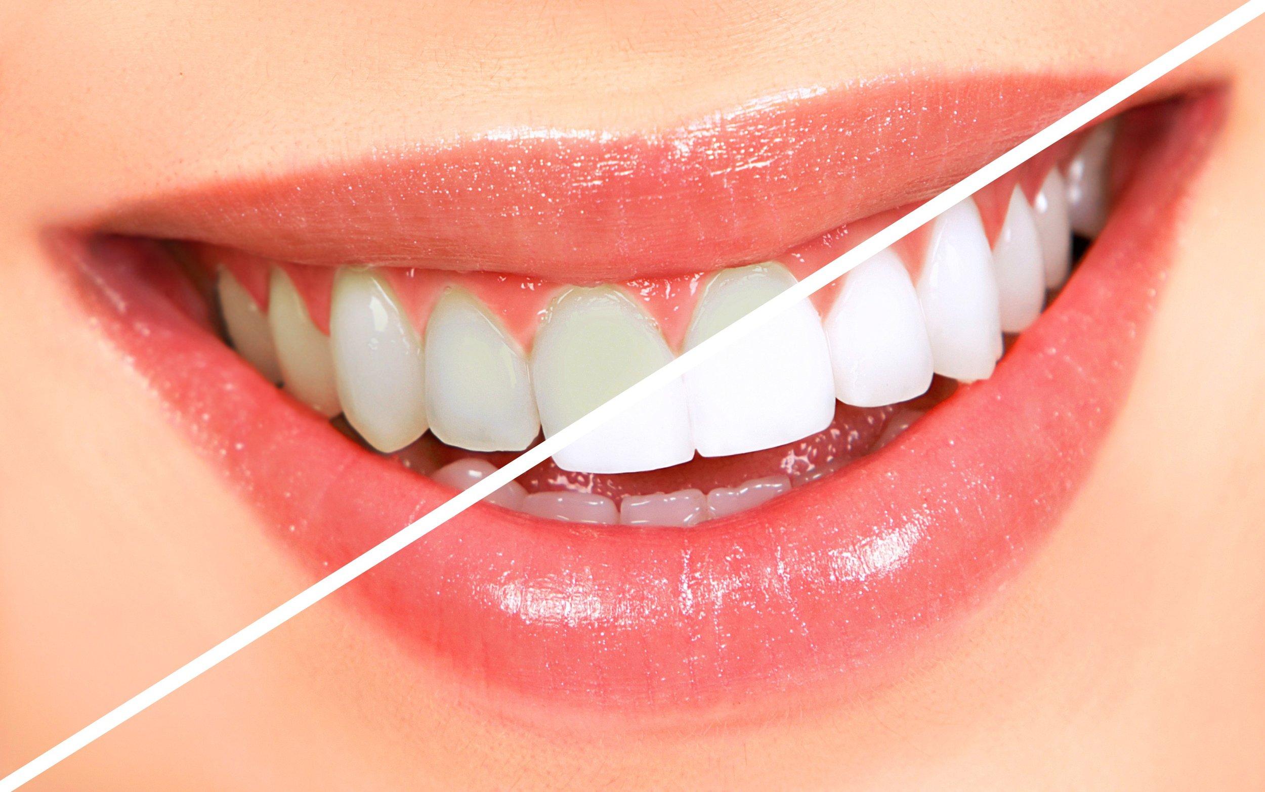 san-jose-teeth-whitening.jpg