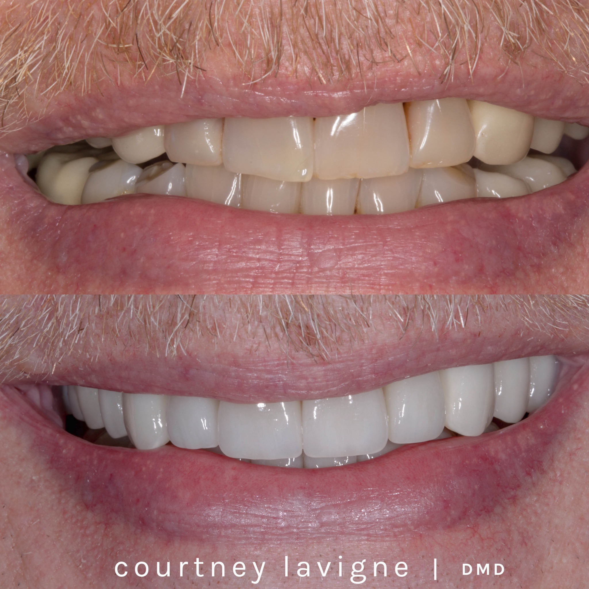 courtney-lavigne-full-mouth-rehabilitation