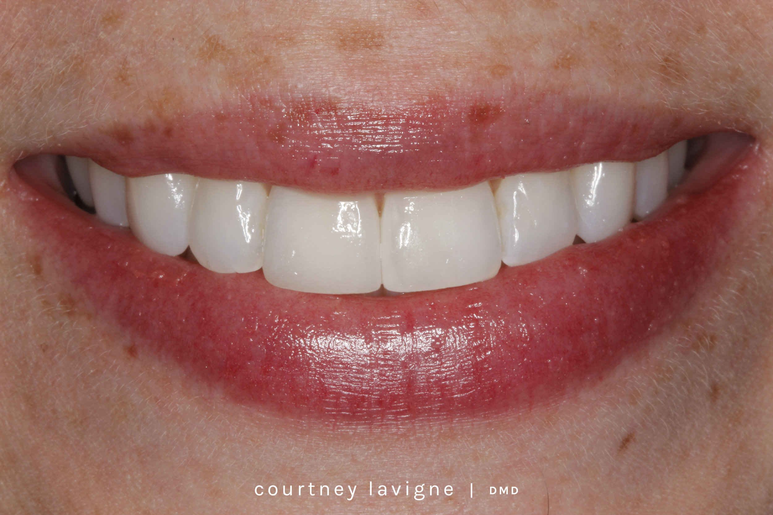 OUR WORK - Whether you're looking for a minor fix to one tooth or an entire smile makeover, Dr. Lavigne has a profound passion for the art and science of smile design. View the before and after work of Dr. Lavigne on real patients she has treated.
