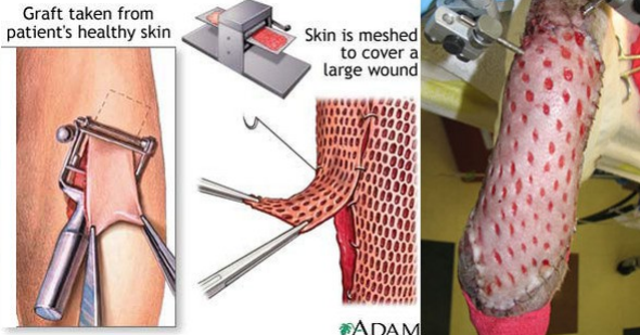Like a skin graft, VetStem stem cell therapy uses a patient's own tissues.