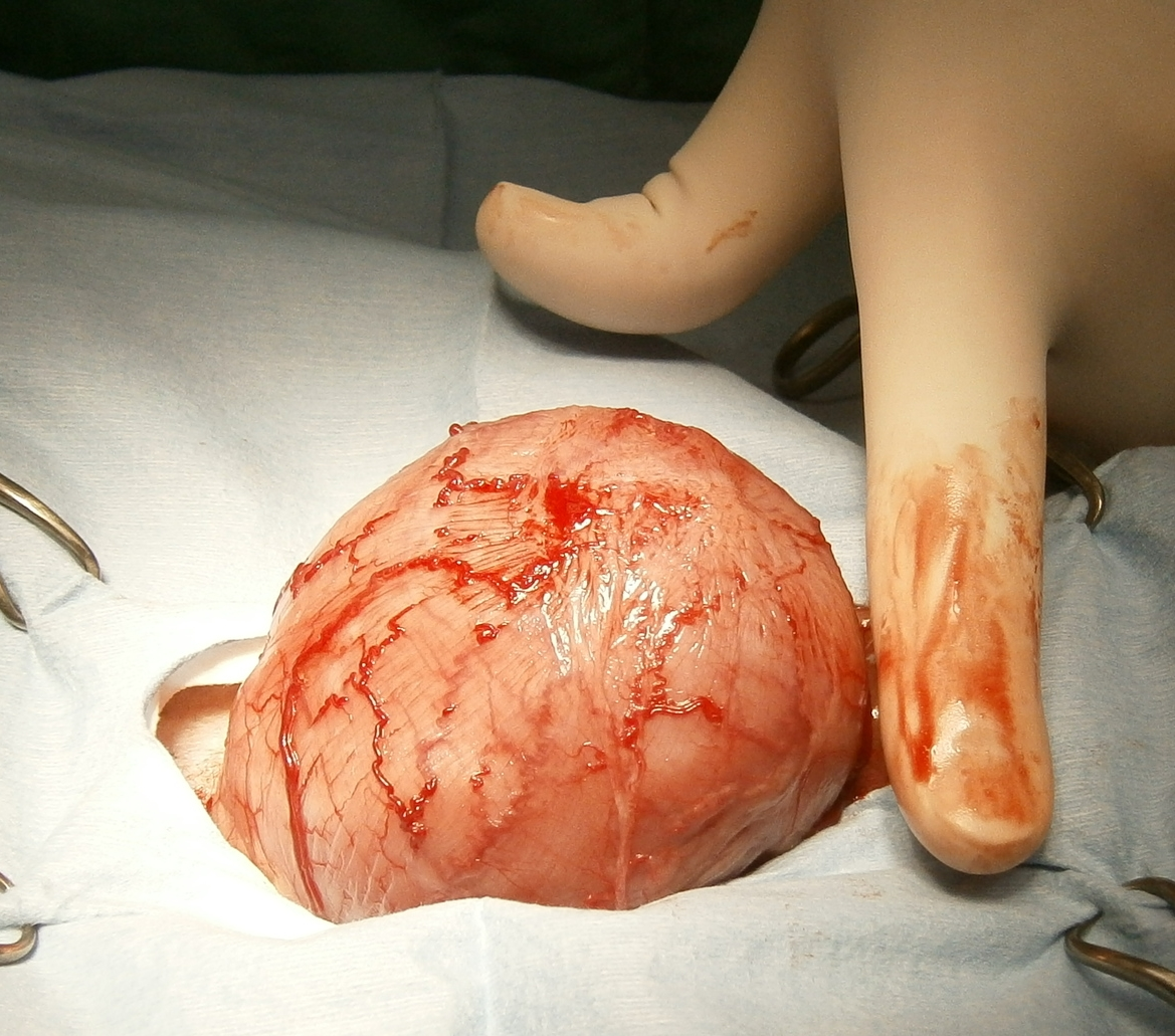 Intra-operative picture of the outside of the bladder. It felt like holding a bean bag.